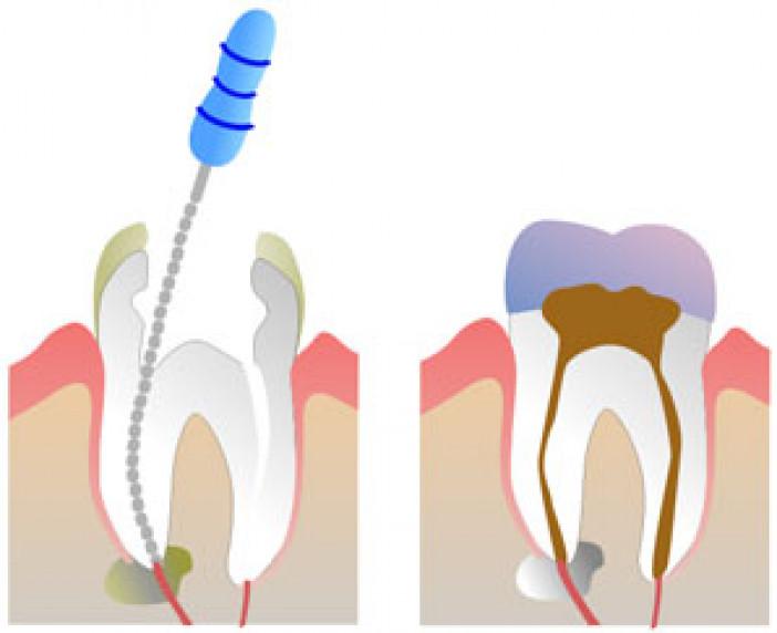 endodoncie5