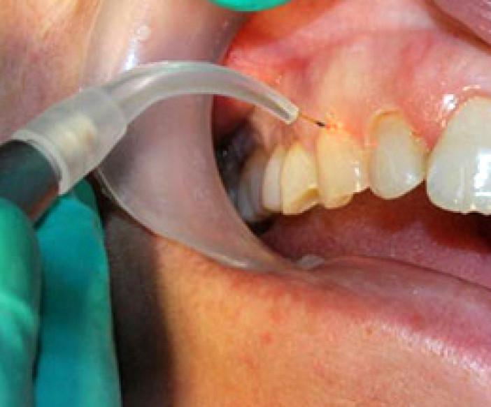 laser-endodontic-care